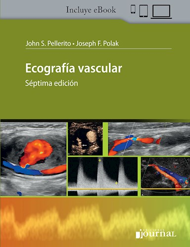 E-Book Ecografía Vascular (eBook)