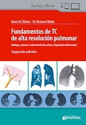 Papel Fundamentos De Tc De Alta Resolución Pulmonar