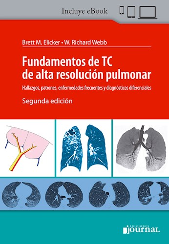 E-Book Fundamentos de TC de alta resolución pulmonar Ed.2 (eBook)