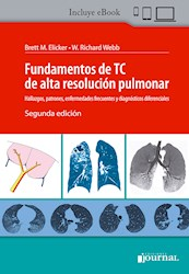 E-Book Fundamentos De Tc De Alta Resolución Pulmonar Ed.2 (Ebook)