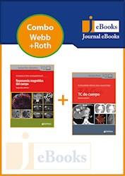 E-Book Combo Webb, Tc De Cuerpo / Roth, Resonancia Magnetica Del Cuerpo (E-Book)
