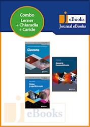 E-Book Colección Oftalmología (Ebook).