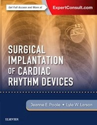 Papel+Digital Surgical Implantation Of Cardiac Rhythm Devices