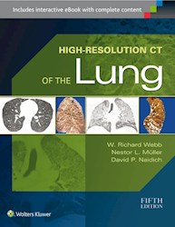 Papel High-Resolution Ct Of The Lung