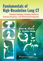 Papel Fundamentals Of High-Resolution Lung Ct: Common Findings, Common Patterns, Common Diseases, And Difs