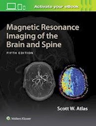 Papel Magnetic Resonance Imaging Of The Brain And Spine