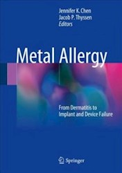 Papel Metal Allergy: From Dermatitis To Implant And Device Failure