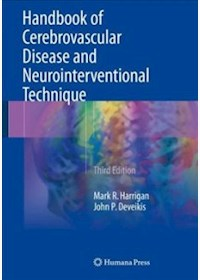 Papel Handbook Of Cerebrovascular Disease And Neurointerventional Technique