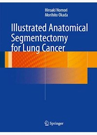 Papel Illustrated Anatomical Segmentectomy For Lung Cancer