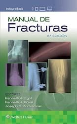 Papel Manual De Fracturas Ed.6
