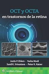 E-book Oct Y Octa En Trastornos De La Retina