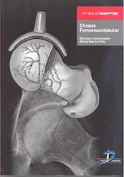 Libro Choque Femoroacetabular