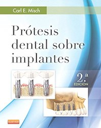 Papel Prótesis Dental Sobre Implantes