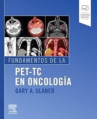 Papel Fundamentos De La Pet-Tc En Oncología