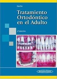 Papel Tratamiento Ortodóntico En El Adulto Ed.2º