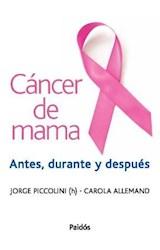 Papel CANCER DE MAMA