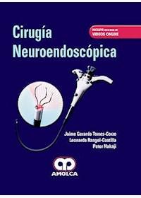 Papel Cirugía Neuroendoscópica