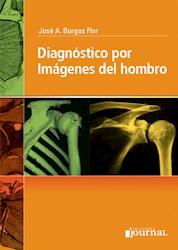 Papel Diagnóstico Por Imágenes Del Hombro