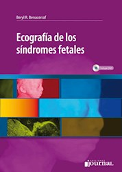 Papel Ecografía De Los Síndromes Fetales
