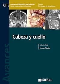Papel Avances En Diagnóstico Por Imágenes: Cabeza Y Cuello