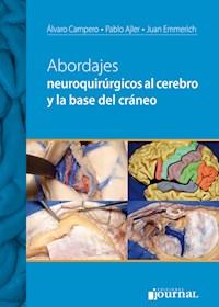 Papel Abordajes Neuroquirúrgicos Al Cerebro Y La Base Del Cráneo