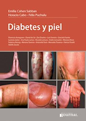 Papel Diabetes Y Piel