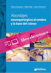 E-Book Abordajes Neuroquirúrgicos Al Cerebro Y La Base Del Cráneo E-Book