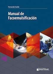 Papel Manual De Facoemulsificación