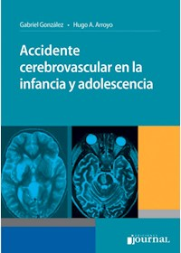 E-Book Accidente Cerebrovascular En La Infancia Y Adolescencia E-Book