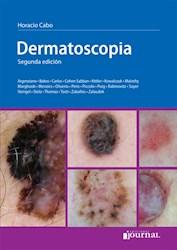 E-Book Dermatoscopía - 2ª Ed E-Book