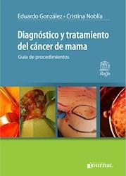 E-Book Diagnóstico Y Tratamiento Del Cáncer De Mama (E-Book)