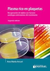 E-Book Plasma Rico En Plaquetas (Ebook)