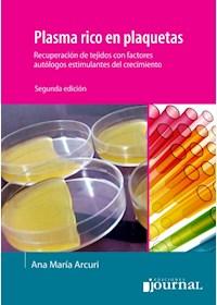 E-Book Plasma Rico En Plaquetas (E-Book)