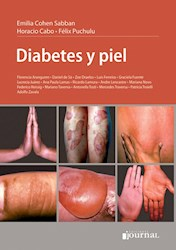 E-Book Diabetes Y Piel E-Book