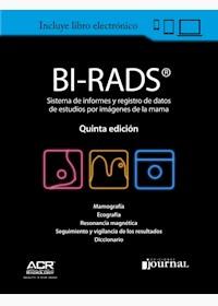 E-Book Bi-Rads® 5ª Ed. - Sistema De Informes Y Registro De Datos De Imagen De Mama E-Book