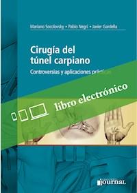 E-Book Cirugía Del Túnel Carpiano (E-Book)
