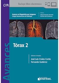 Papel+Digital Avances En Diagnóstico Por Imágenes: Tórax 2