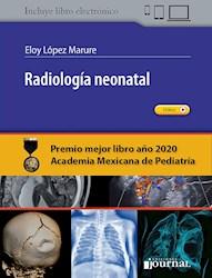Papel Radiología Neonatal