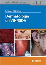 Papel Dermatología En Vih/Sida