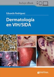 E-Book Dermatología En Vih/Sida (Ebook)