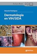 E-Book Dermatología Y Sida (E-Book)