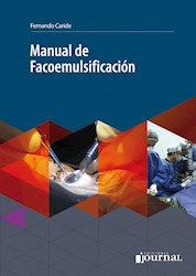 E-Book Manual De Facoemulsificación (Ebook)