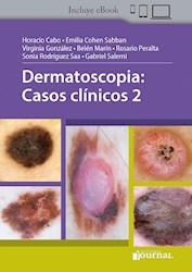 Papel Dermatoscopia: Casos Clínicos 2